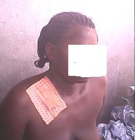 femme victime du BIR 1 +